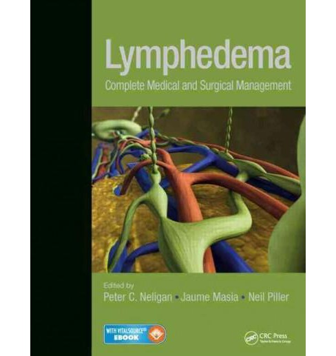 Lymphedema : Complete Medical and Surgical Management (Hardcover) - image 1 of 1