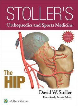 Stoller's Orthopaedics and Sports Medicine : The Hip -  by M.D. David W. Stoller (Hardcover)