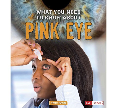 What You Need to Know About Pink Eye (Library) (Nancy Dickmann) - image 1 of 1