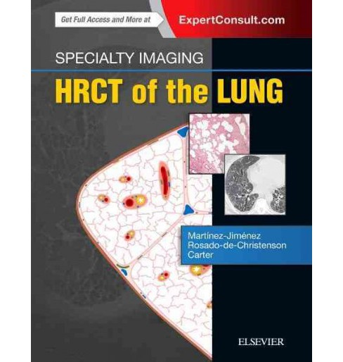 Specialty Imaging : HRCT of the Lung (Hardcover) (M.D. Santiago Martinez-Jimenez & M.D. Melissa L. - image 1 of 1