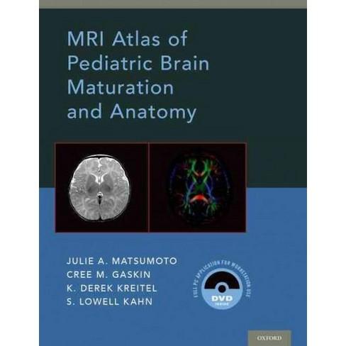 Mri Atlas Of Pediatric Brain Maturation And Anatomy Hardcover