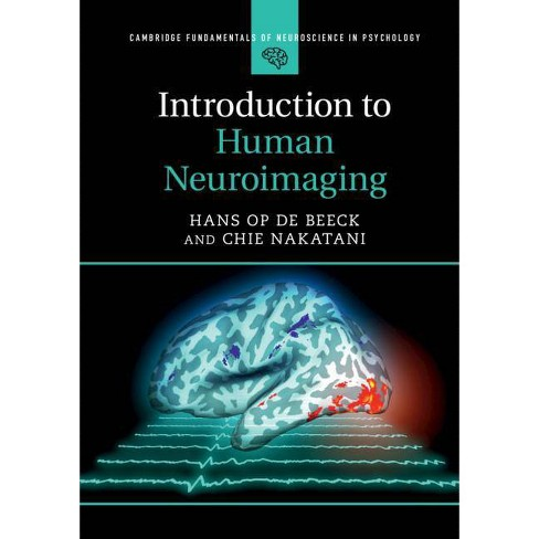 Introduction to Human Neuroimaging - (Cambridge Fundamentals of Neuroscience in Psychology) (Paperback) - image 1 of 1