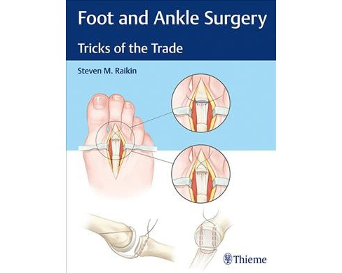 Foot and Ankle Surgery : Tricks of the Trade -  by M.D. Steven M. Raikin (Hardcover) - image 1 of 1