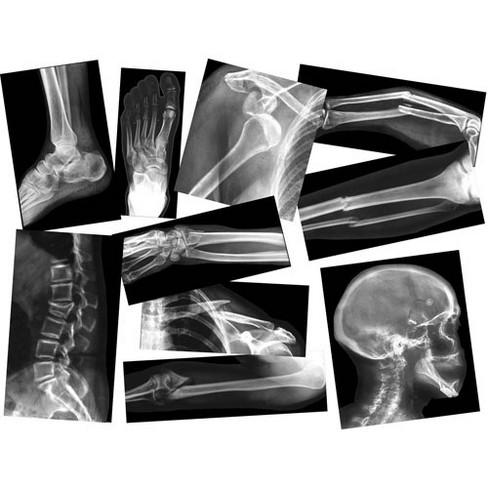 Roylco Broken Bones X-Rays - image 1 of 1