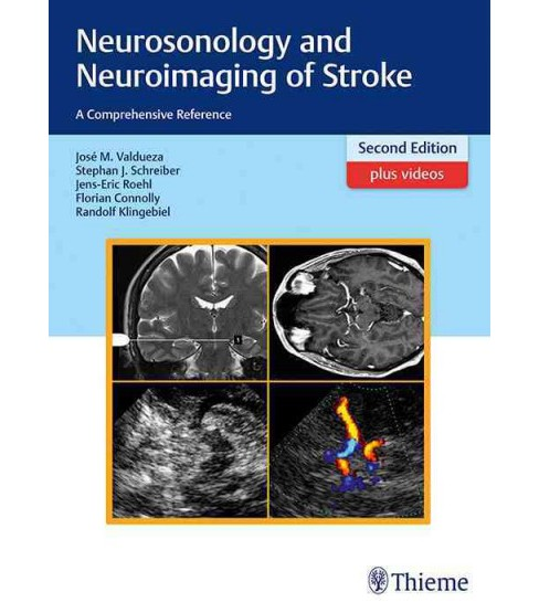 Neurosonology and Neuroimaging of Stroke : A Comprehensive Reference (Hardcover) (Josu00e9 Manuel - image 1 of 1