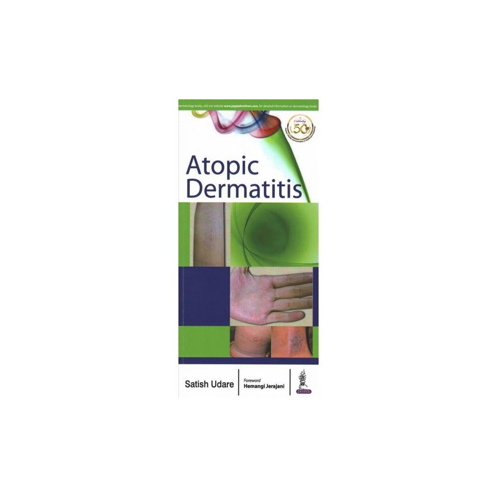 Atopic Dermatitis - 1 by M.D. Satish Udare (Paperback)