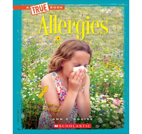 Allergies (Paperback) (Ann O. Squire) - image 1 of 1