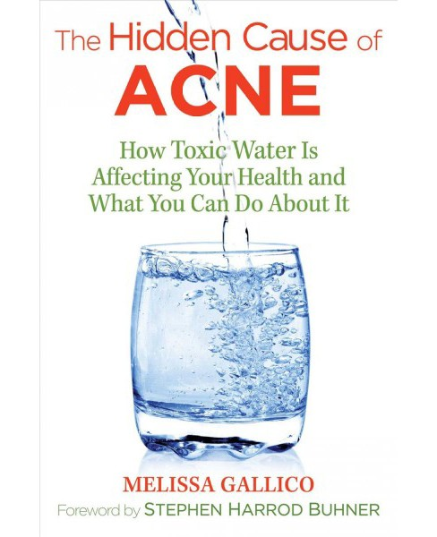 Hidden Cause of Acne : How Toxic Water Is Affecting Your Health and What You Can Do About It - image 1 of 1