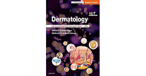 Dermatology : An Illustrated Colour Text (Paperback) (M.D. David J. Gawkrodger) - image 1 of 1