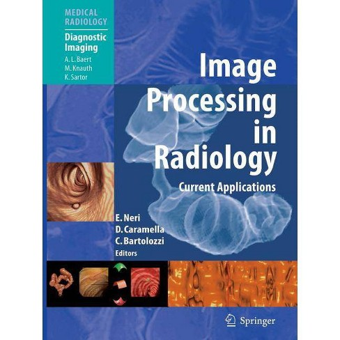 Image Processing in Radiology - (Medical Radiology: Diagnostic Imaging) (Paperback) - image 1 of 1