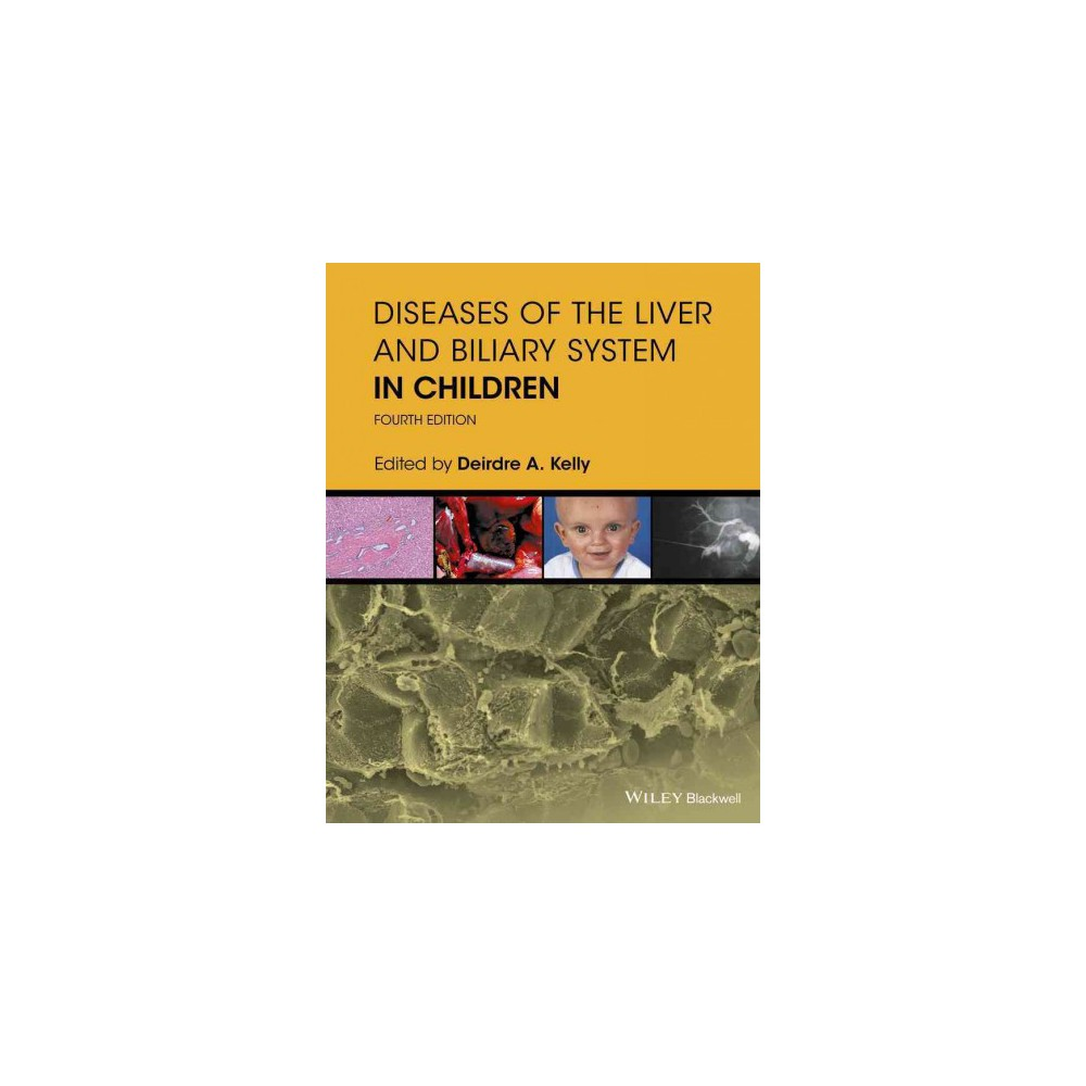 Diseases of the Liver and Biliary System in Children (Hardcover) (Deirdre Kelly)