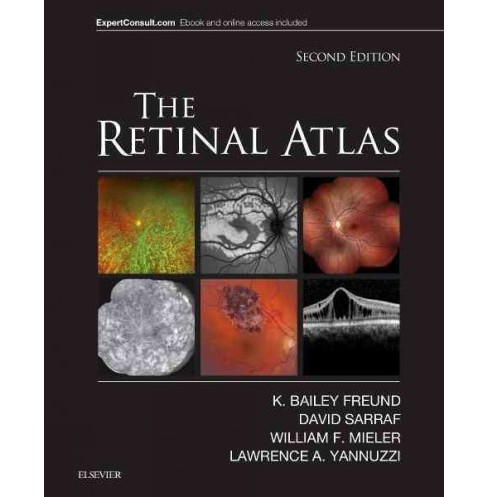 Retinal Atlas (Hardcover) (M.D. K. Bailey Freund & M.D. David Sarraf & M.D. William F. Mieler & M.D. - image 1 of 1