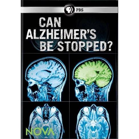 Nova: Can Alzheimer's Be Stopped? (DVD) - image 1 of 1