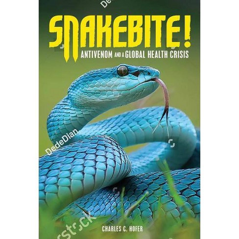Snakebite! - by  Charles C Hofer (Hardcover) - image 1 of 1