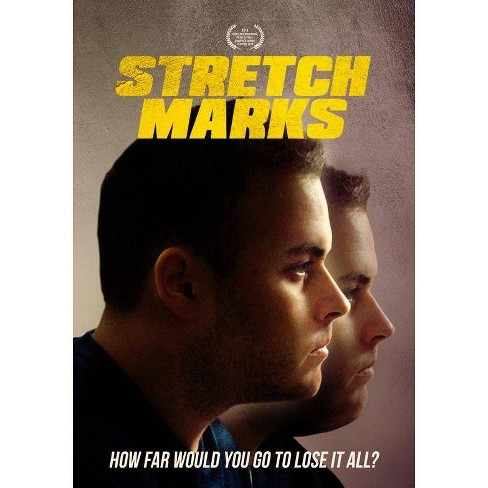 Stretch Marks (DVD) - image 1 of 1