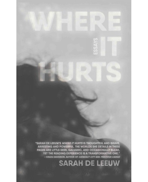 Where It Hurts (Paperback) (Sarah de Leeuw) - image 1 of 1