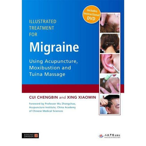 Illustrated Treatment for Migraine Using Acupuncture, Moxibustion and Tuina Massage - image 1 of 1
