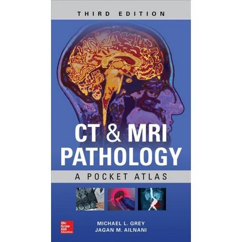 Ct Mri Pathology A Pocket Atlas By Michael L Grey Jagan