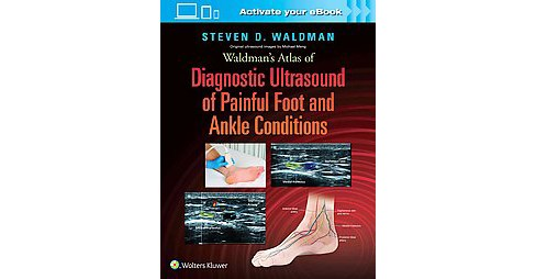 Waldman's Atlas of Diagnostic Ultrasound of Painful Foot and Ankle Conditions (Hardcover) (M.d. Steven - image 1 of 1
