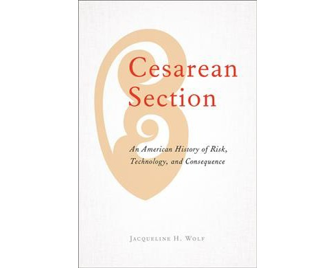 Cesarean Section : An American History of Risk, Technology, and Consequence -  1 (Hardcover) - image 1 of 1