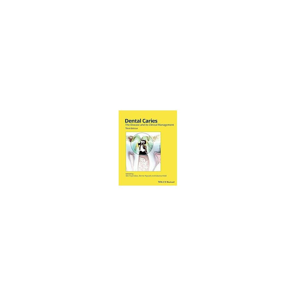 Dental Caries (Hardcover)