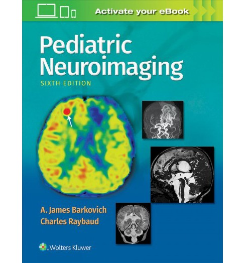 Pediatric Neuroimaging -  by M.D. A. James Barkovich & M.D. Charles Raybaud (Hardcover) - image 1 of 1