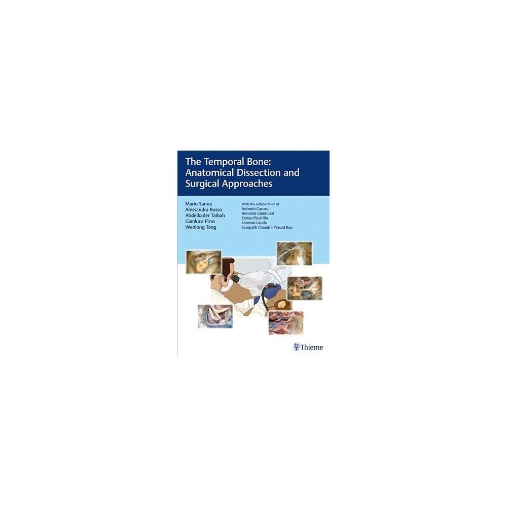 Temporal Bone : Anatomical Dissection and Surgical Approaches - 1 (Hardcover)
