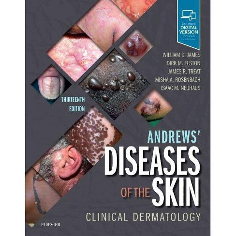 Andrews' Diseases of the Skin - 13 Edition (Hardcover) - image 1 of 1