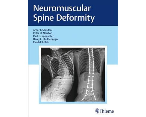 Neuromuscular Spine Deformity -  (Hardcover) - image 1 of 1