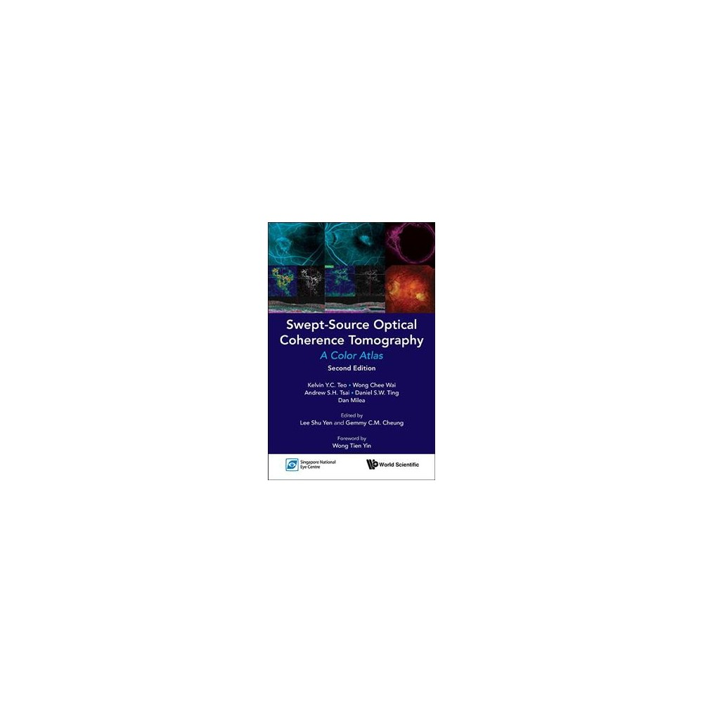 Swept-Source Optical Coherence Tomography : A Color Atlas - 2 (Paperback)