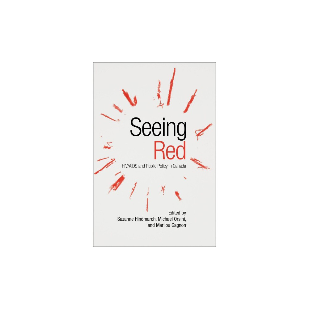 Seeing Red : Hiv/Aids and Public Policy in Canada - (Paperback) What does it mean to think of Hiv/Aids policy in a critical manner? Seeing Red offers the first critical analysis of Hiv/Aids policy in Canada. Featuring the diverse experiences of people living with Hiv, this collection highlights various perspectives from academics, activists, and community workers who look ahead to the new and complex challenges associated with Hiv/Aids and Canadian society. In addition to representing a diversity of voices and perspectives, Seeing Red reflects on historical responses to Hiv/Aids in Canada. Among the specific issues addressed are the over-representation of Indigenous peoples among those living with Hiv, the criminalization of Hiv, and barriers to health and support services, particularly as experienced by vulnerable and marginalized populations. The editors and contributors seek to show that Canada has been neither uniquely compassionate nor proactive when it comes to supporting those living with Hiv/Aids. Instead, this remains a critical area of public policy, one fraught with challenges as well as possibilities.