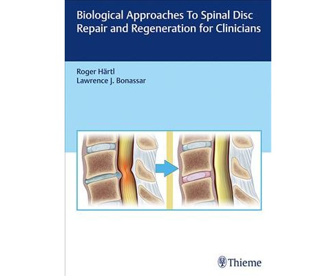 Biological Approaches to Spinal Disc Repair and Regeneration for Clinicians -  (Hardcover) - image 1 of 1