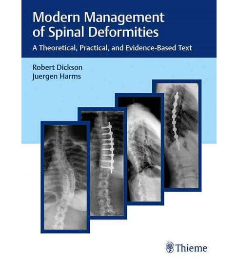Modern Management of Spinal Deformities : A Theoretical, Practical, and Evidence-based Text (Hardcover) - image 1 of 1