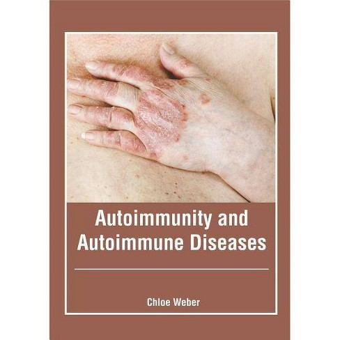Autoimmunity and Autoimmune Diseases - (Hardcover)