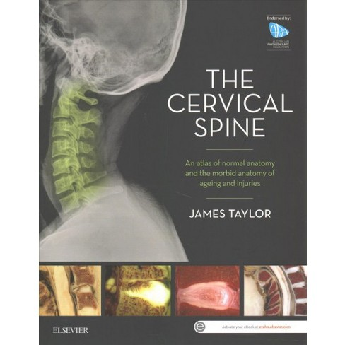 Cervical Spine An Atlas Of Normal Anatomy And The Morbid Anatomy