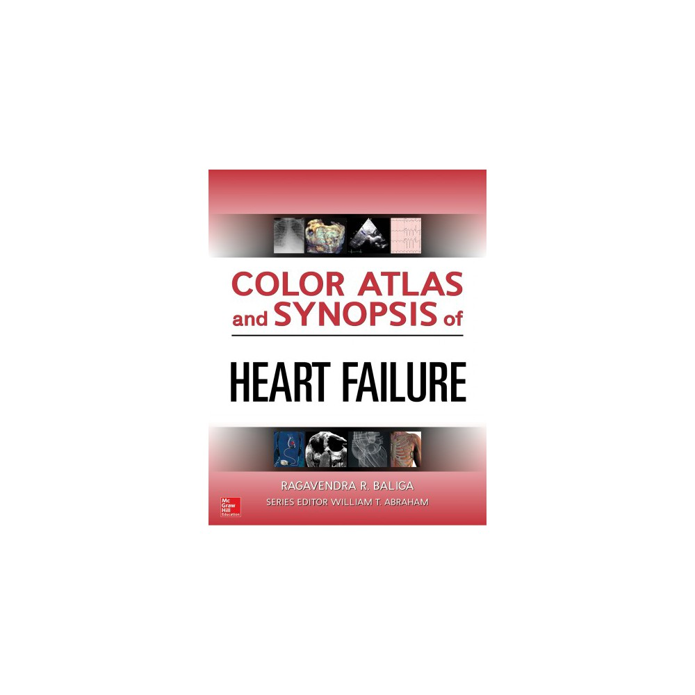 Color Atlas and Synopsis of Heart Failure - 1 (Hardcover)