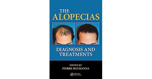 Alopecias : Diagnosis and Treatments (Hardcover) - image 1 of 1