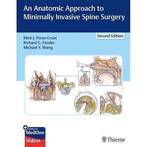 An Anatomic Approach to Minimally Invasive Spine Surgery - 2 Edition (Hardcover) - image 1 of 1