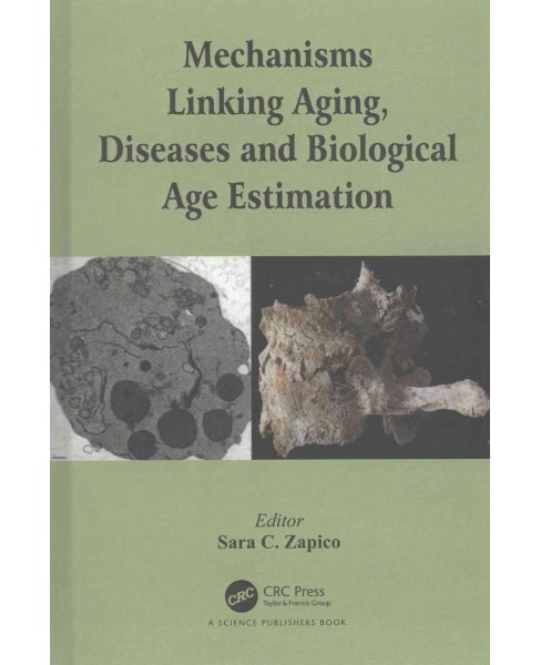 Mechanisms Linking Aging, Diseases and Biological Age Estimation (Hardcover) - image 1 of 1