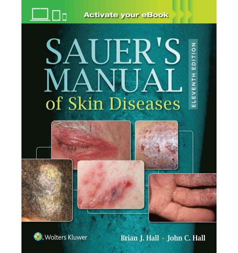 Sauer's Manual of Skin Diseases (Hardcover) (M.D. Brian J. Hall & M.D. John C. Hall) - image 1 of 1