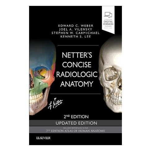 Netter\'s Concise Radiologic Anatomy - (Paperback) : Target