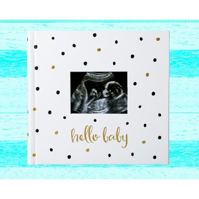 Pearhead Photo and Scrapbook Album - Black and Gold