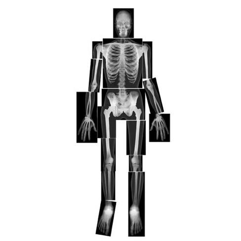 Royclo Human X-Rays on Film - image 1 of 1
