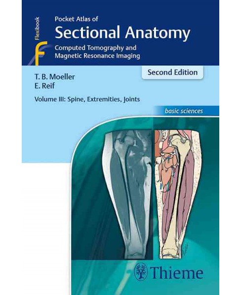 Pocket Atlas of Sectional Anatomy : Computed Tomography and Magnetic Resonance Imaging - Spine, - image 1 of 1