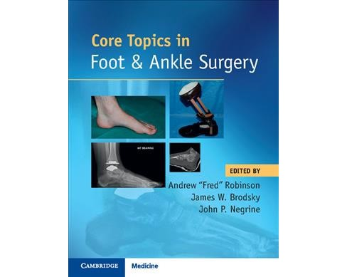 Core Topics in Foot and Ankle Surgery -  (Hardcover) - image 1 of 1