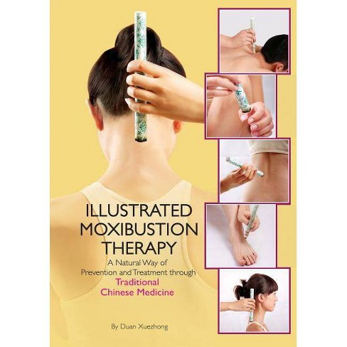 Illustrated Moxibustion Therapy - by  Duan Xuexhong (Hardcover) - image 1 of 1