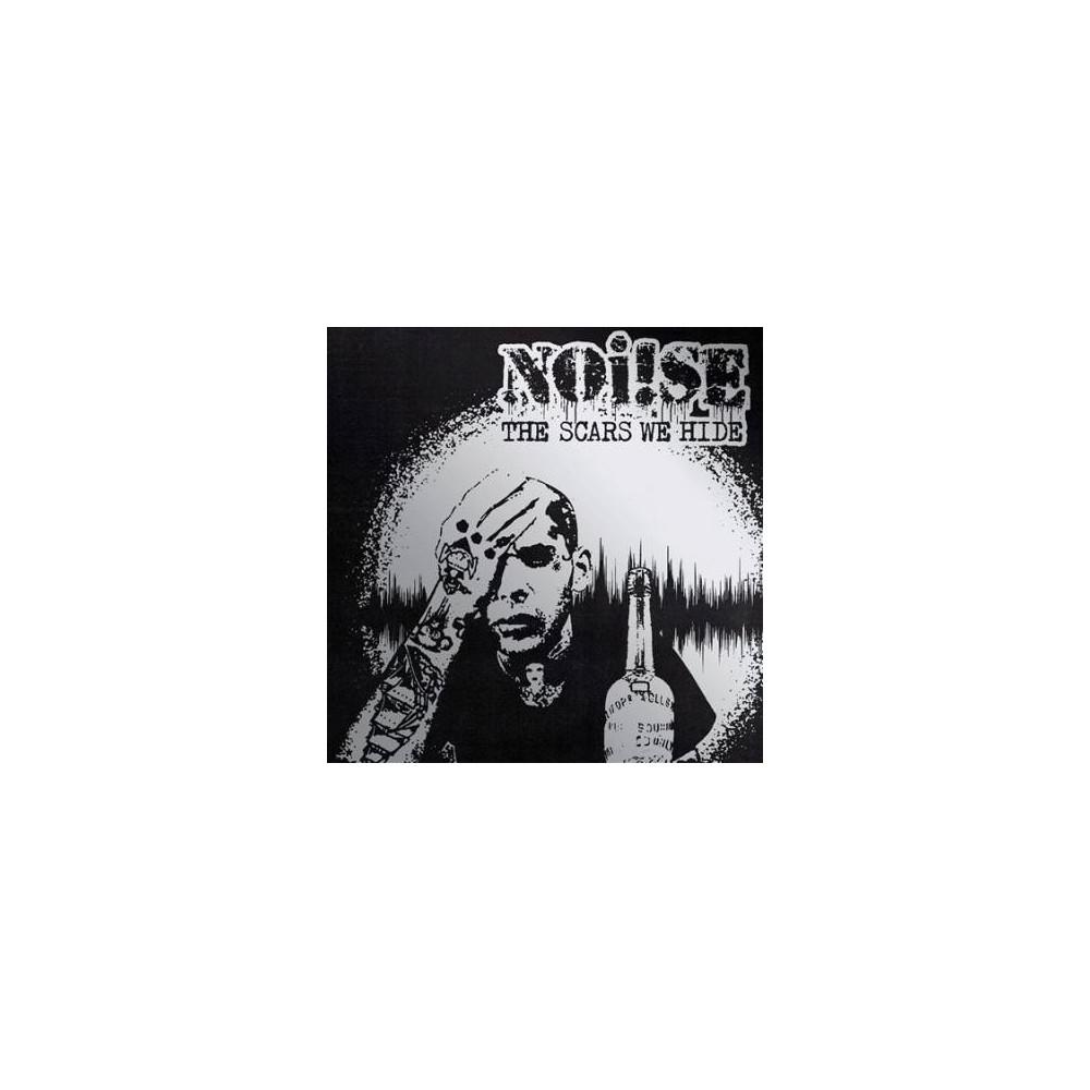 Noise - Scars We Hide (Vinyl)