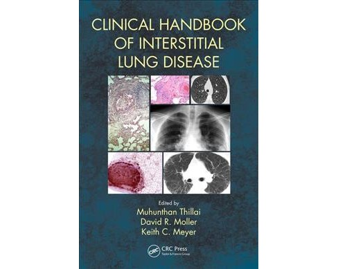Clinical Handbook of Interstitial Lung Disease (Paperback) - image 1 of 1
