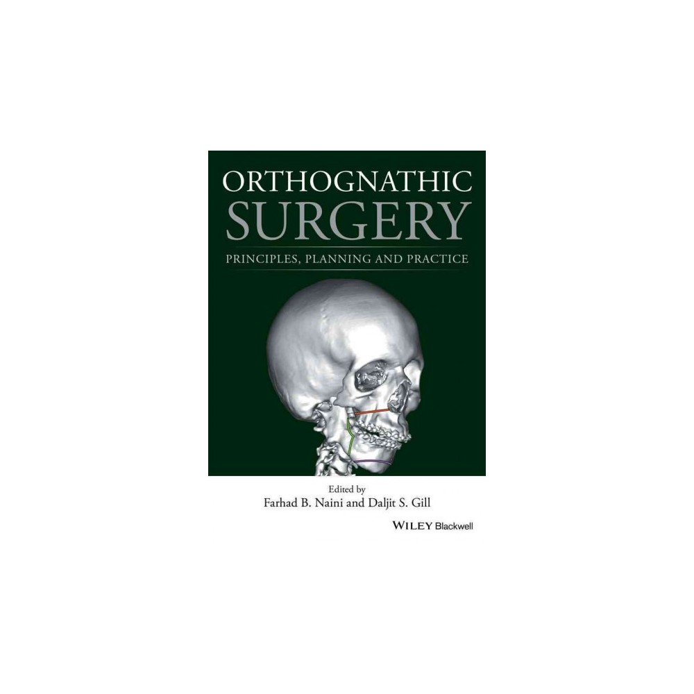 Orthognathic Surgery : Principles, Planning and Practice (Hardcover)