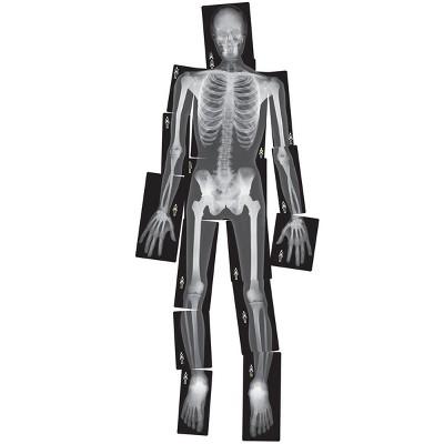 Royclo Human X-Rays on Film